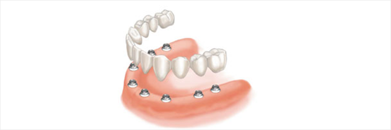 all-on-6 Dental Implants or all-on-8 Dental Implants North Miami