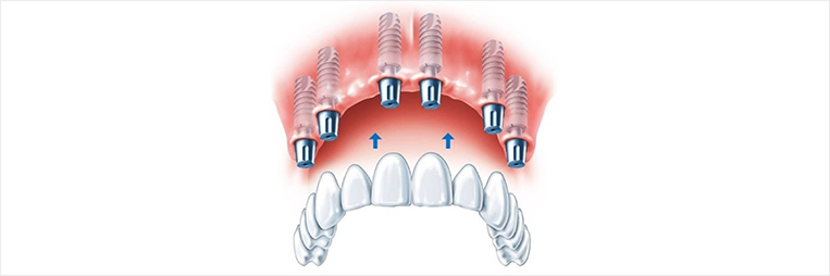 All-on-6 Bridge Dental Bridge