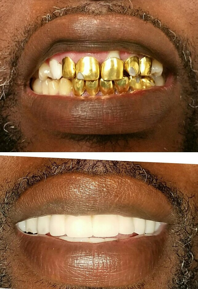 replacing gold teeth